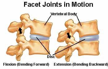 Chiropractic Richmond VA Facet Syndrome
